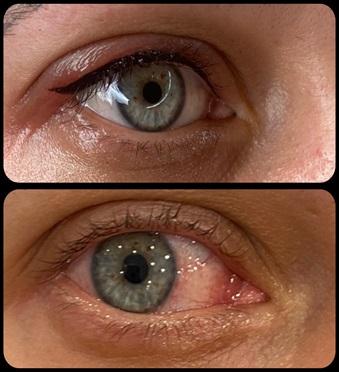 Pigmentacja oczu